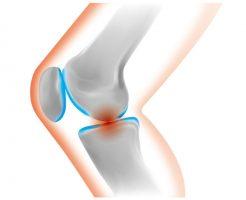 変形性膝関節症の発症メカニズム